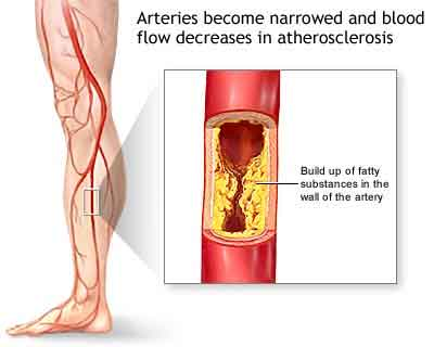 Do Not Ignore Legs Ace It Can Be Symptoms For Heart Diseases And Paralysis
