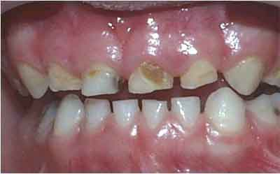 Uncleand Teeth Can Cause Heart Diseases