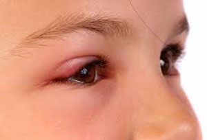 The Easiest Way To Remove Eye Swelling