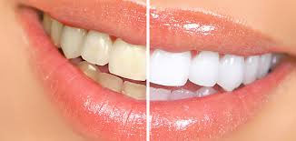 Clean And Shiny Teeth Making Simple Home Tips